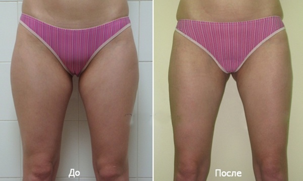Вероника до и после